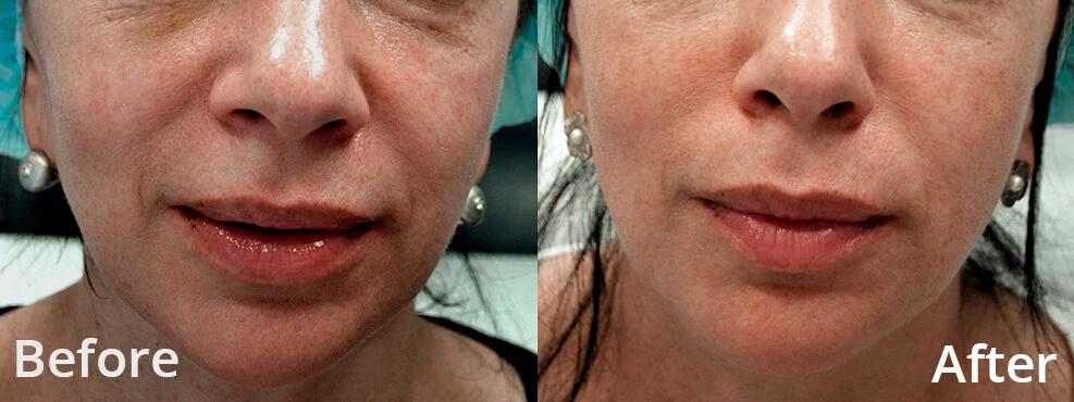 morpheo-treatment2-by-DrLemusRangel